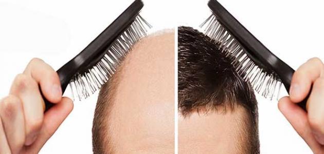 حكم زراعة الشعر