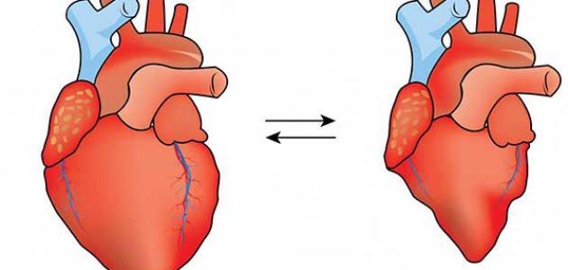 ارتخاء صمام القلب وكيفية علاجه
