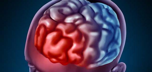 العلاقة بين نزيف الدماغ والغيبوبة