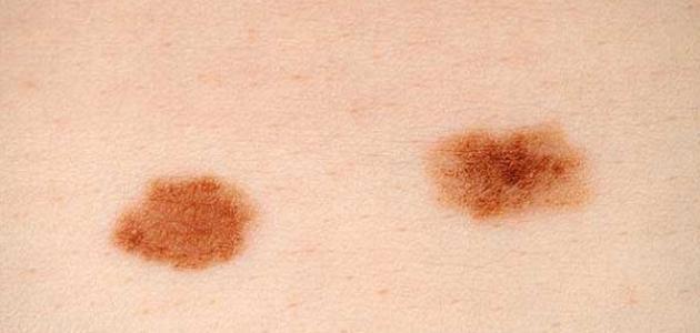 تشخيص سرطان الجلد