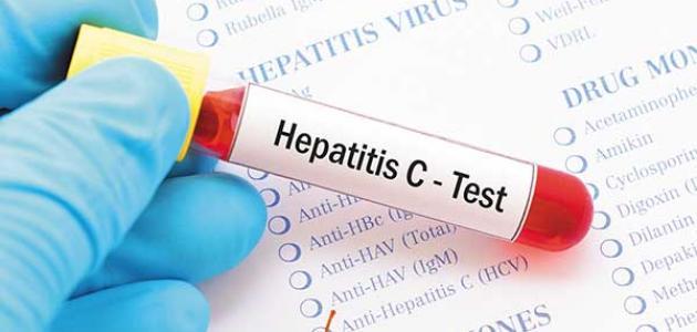 أسباب التهاب الكبد C