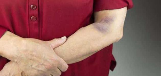 أعراض نقص الصفائح الدموية عند الرجال