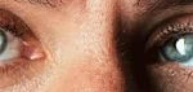 أسباب ظهور بقعة صفراء في بياض العين