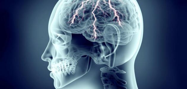 أعراض التشنج العصبي