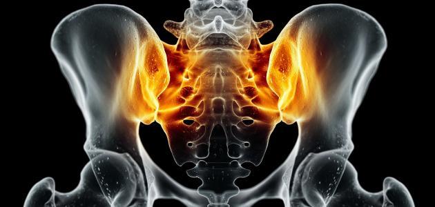 أعراض التهاب عظام الحوض