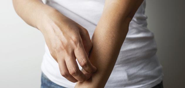 معلومات عن الإكزيما عند الكبار