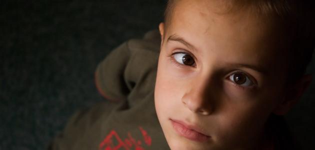 معلومات عن الحول الكاذب عند الأطفال