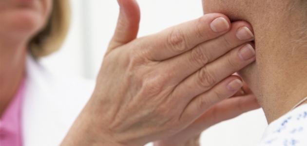 علاج التهاب الغدد اللمفاوية خلف الأذن