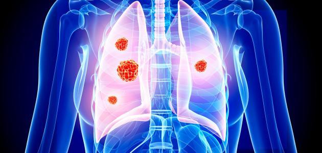 أعراض سرطان الرئة المرحلة الرابعة