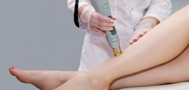 علاج تشققات الجسم البيضاء