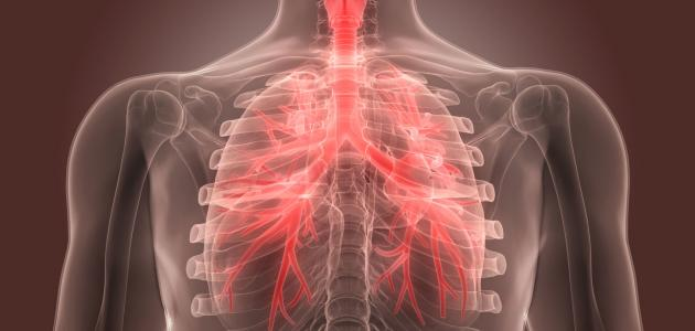 أعراض التهاب القصبات وعلاجها